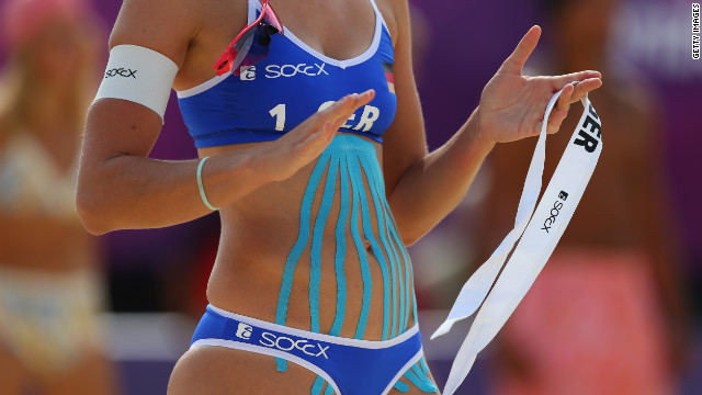 Is Taping/Strapping just a Fad?